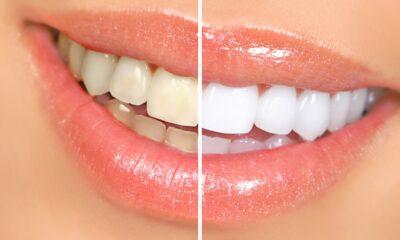 Teeth-Whitening Kits