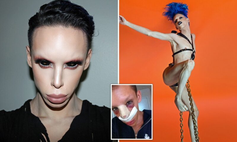 Man Goes Through 100 Procedures To Transform Into a Genderless Alien