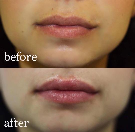 Lip Filling Treatment