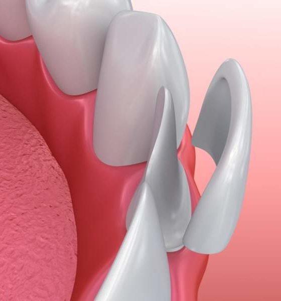 Upgrade Your Smile Top 5 Big Benefits Of Porcelain Veneers
