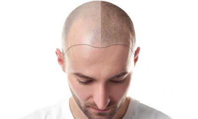 Micropigmentation Treatment