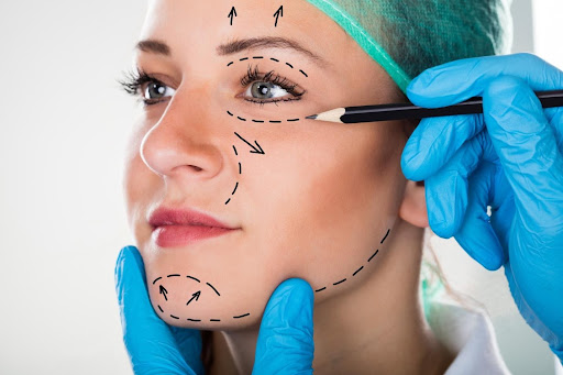 Types of Facelifts
